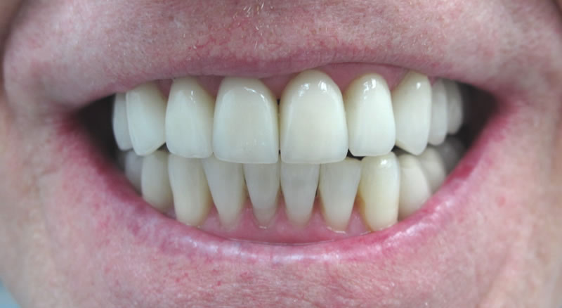 Case Study #2 - another happy smile