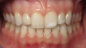 Case Study #3 - another happy smile