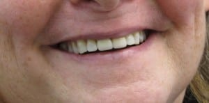 Case Study #1 - another happy smile